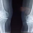 Artróza kolenního kloubu a možnosti její léčby