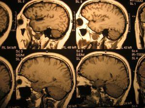 Parkinsonova choroba postihuje častěji muže