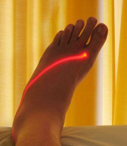 Bolesti krční páteře, artróza, neuralgie a jejich přírodní léčba