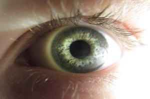 Prasklá cévka v oku nám může zachránit život