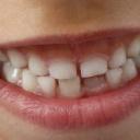 Zánět dásní, který se neléčí, vede ke ztrátě zubů