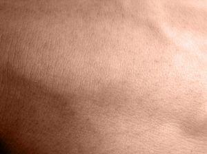 Zhoubné nádory kůže - melanom, bazaliom a jejich léčba